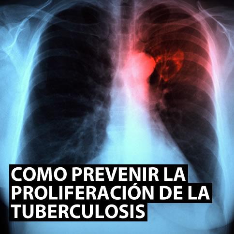 Prevenir la proliferación de la tuberculosis